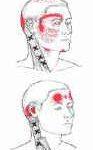 הקרנות כאב של טריגרים על שריר מפנה הראש - גבעון פלד