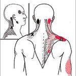 הקרנות הכאב של טריגר בשריר הטרפז - גבעון פלד