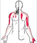 הקרנות הכאב של טריגרים בשריר המעלות - גבעון פלד
