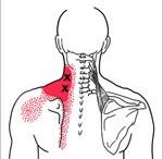 הקרנות כאב של טריגרים בשריר מרים השכמה - גבעון פלד