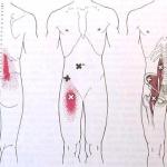 הקרנות כאב של טריגרים בשריר המותן-כסל - גבעון פלד